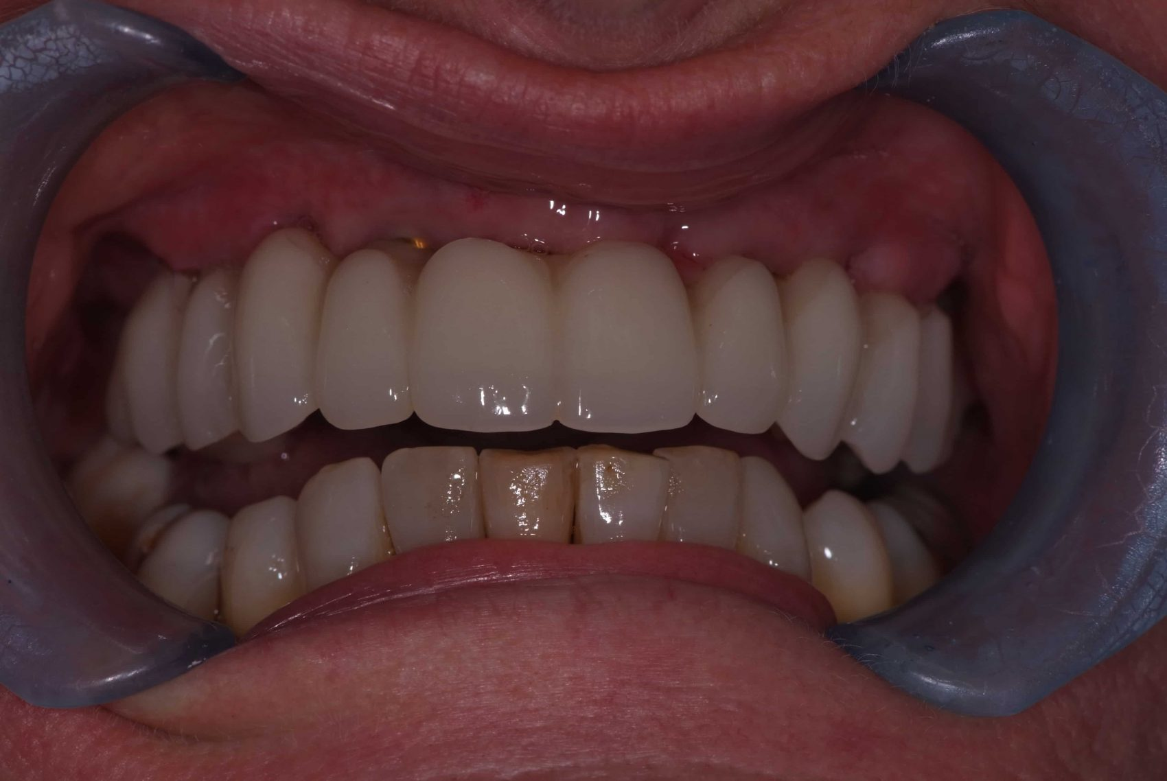 New Teeth in a Day Case Study